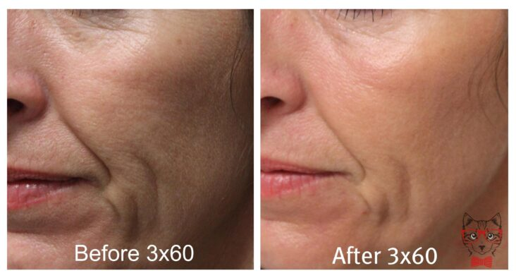 Nowadays The Co2 Laser Is A Therapeutic Tool In Numerous Facial Rejuvenation Techniques Both Non Invasive And Minimally Invasive.