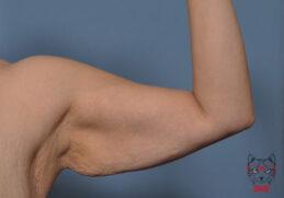 Armpit Liposuction