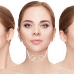 Everything You Need To Know About Neck Lift